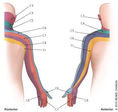 YOUR PHYSIO - Cervical Radiculopathy